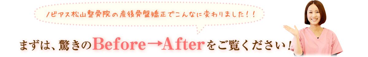 松山市産後骨盤矯正、まずは、驚きのBefore→Afterをご覧ください!